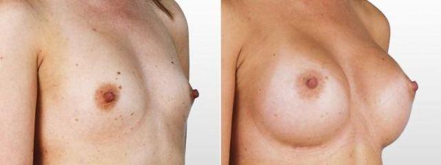 Augmentace prsou