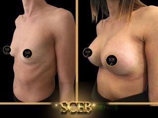 Mastoplastica additiva - SCEB Salute Chirurgia Estetica Benessere - Dott. Manuel De Giovanni