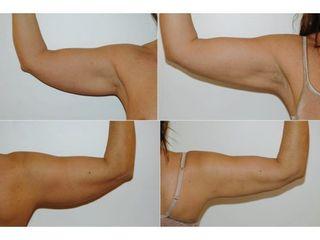 Liposuzione - Dottor Gianluca Campiglio