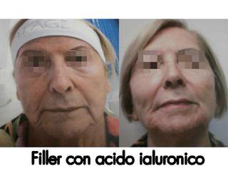 Acido ialuronico prima e dopo