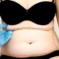 Co warto wiedzieć na temat liposukcji infradźwiękowej N.I.L.?