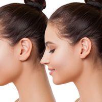 Bezoperacyjna korekta nosa nićmi APTOS