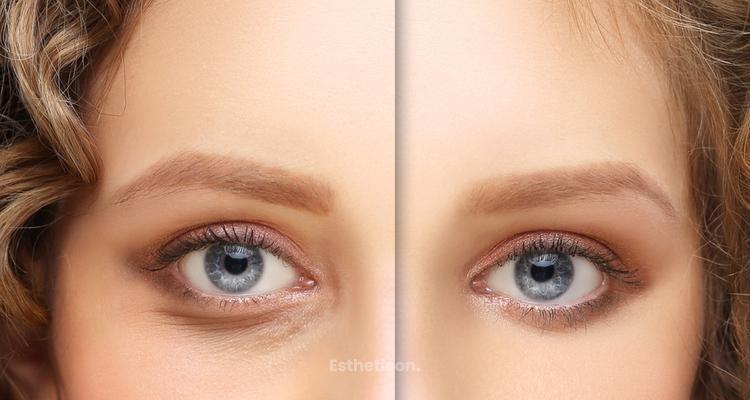 Korekcja okolicy oka