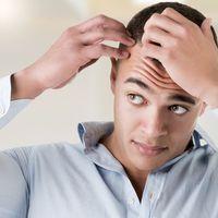 Najnowocześniejsze metody przeszczepu włosów