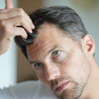Przeszczep włosów i farmakoterapia w leczeniu łysienia androgenowego