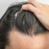 Przeszczep włosów z wykorzystaniem robotów –  dlaczego warto?