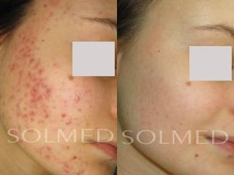 Laserowe leczenie trądziku-653655