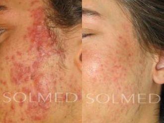 Laserowe leczenie trądziku-653656