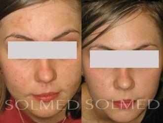 Laserowe leczenie trądziku-653658