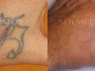 Usuwanie tatuażu-653659