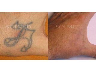 Usuwanie tatuażu - przed i po