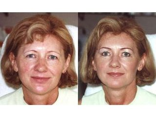 Makijaż permanentny - przed i po