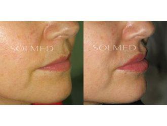 Powiększanie ust kwasem hialuronowym-691440