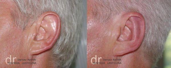 BEFORE plastyka uszu polanica 19