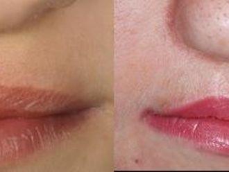Przed i po: rozszczep wargi i podniebienia