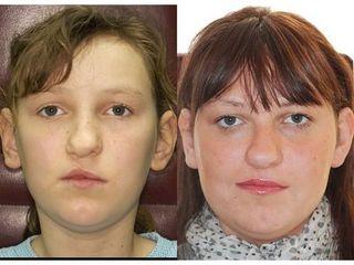 Przed i po - rozszczep wargi i  podniebienia
