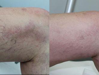 Skleroterapia żylaków - 657179