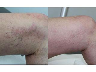 Usuwanie żylaków - przed i po