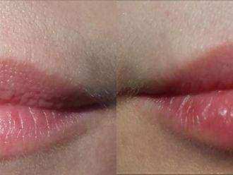 Powiększanie ust (Augmentacja) - 659955