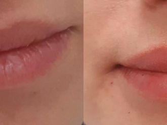 Powiększanie ust (Augmentacja) - 659960