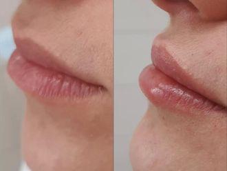 Powiększanie ust (Augmentacja) - 659963