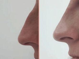 Korekta nosa kwasem hialuronowym-662695