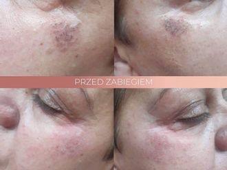 Laserowe zabiegi dermatologii estetycznej-662702