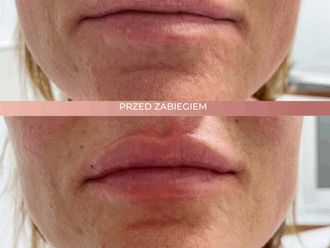 Powiększanie ust kwasem hialuronowym-662704