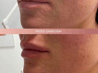 Powiększanie ust kwasem hialuronowym-662705
