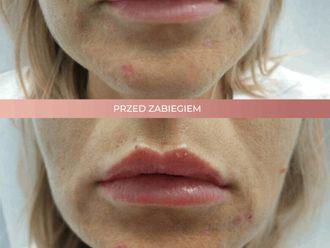 Powiększanie ust kwasem hialuronowym-662706