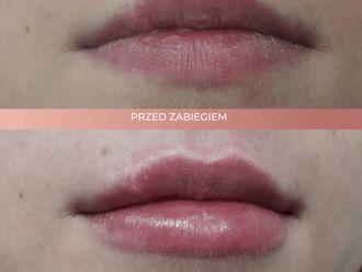 Powiększanie ust kwasem hialuronowym-662708