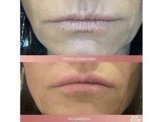 Nawilżanie ust kwasem hialuronowym - przed i po