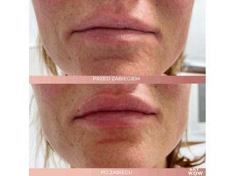 Powiększanie ust kwasem hialuronowym-685923