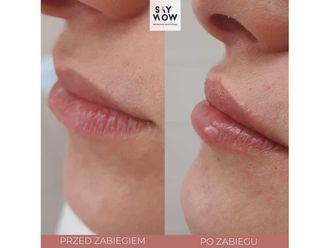 Powiększanie ust kwasem hialuronowym-685924