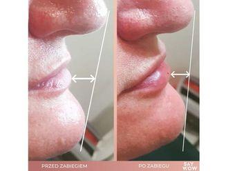 Powiększanie ust kwasem hialuronowym-685940