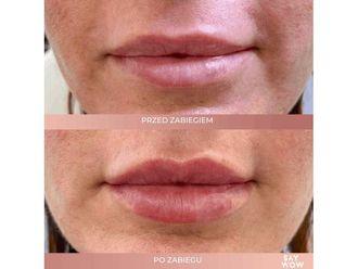 Powiększanie ust kwasem hialuronowym - 685947