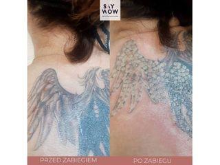 Usuwanie tatuażu laserem - przed i po