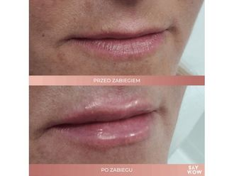 Powiększanie ust kwasem hialuronowym-685956