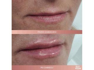 Wypełnianie ust kwasem hialuronowym - przed i po