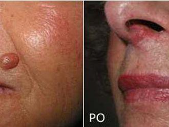 Laserowe usuwanie zmian skórnych-651331