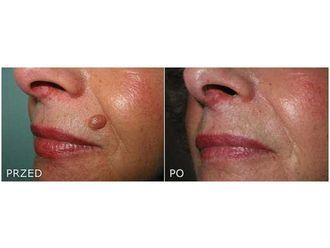 Laserowe usuwanie zmian skórnych-691474