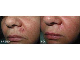 Laserowe usuwanie zmian skórnych-691478