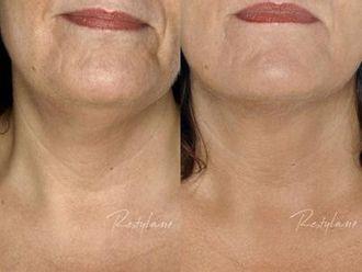 Mezoterapia igłowa - odmładzanie twarzy, szyi, dekoltu, dłoni-654380