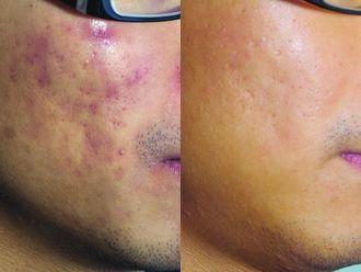Laserowe leczenie trądziku-658180
