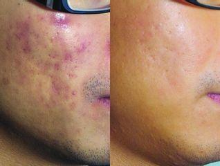 Przed i pro redukcja zmian trądzikowych