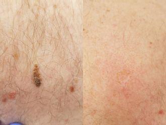 Laserowe usuwanie zmian skórnych-658203