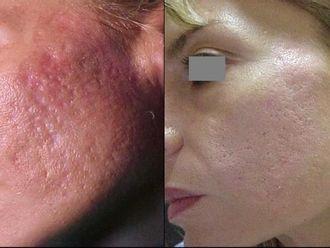 Laserowe usuwanie zmian skórnych-658215