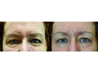 Przed i po: poprawa jakości skóry Exilis radiofrekwencja