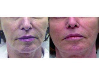 Zabiegi kosmetologiczne-690931