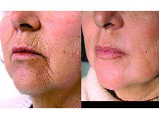 Przed i po: fotodmładzanie skóry, lifting tkanek, zabieg laserowy